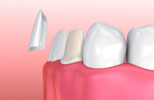 Your cosmetic dentist will improve your smile with porcelain veneers.
