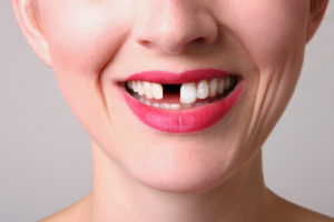 young woman missing teeth