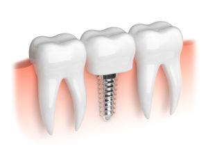 An illustration of dental implants.