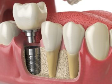 3D image of a single implant in lower jawbone