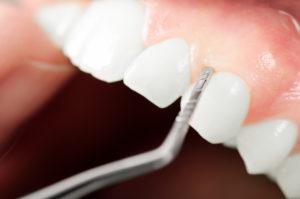 Close-up of gum exam